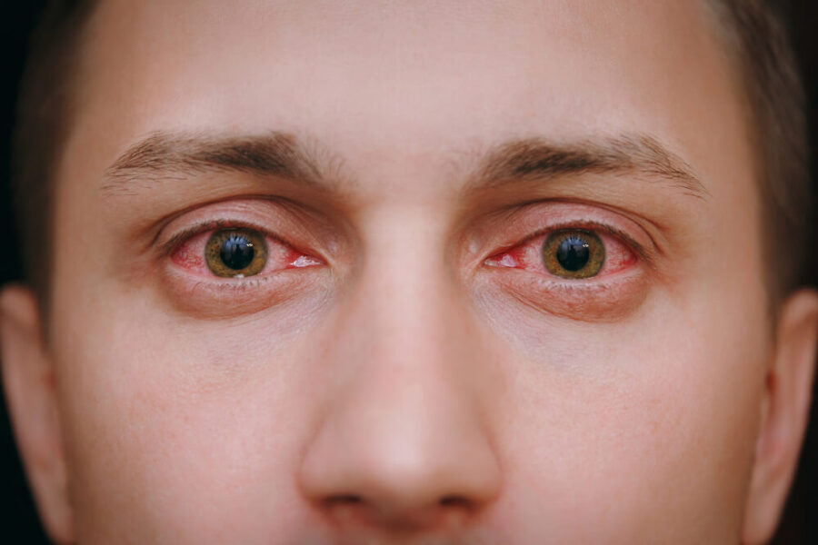 Simptomi alergijske reakcije na polen - Suzne oči
